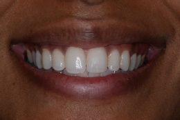 enlighten-whitening-case-after