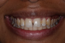 enlighten-whitening-case-before