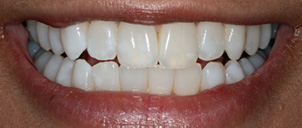good-whitening-case-after