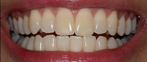 good-whitening-case-before