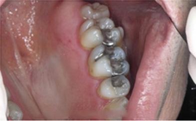 metal amalgam fillingns