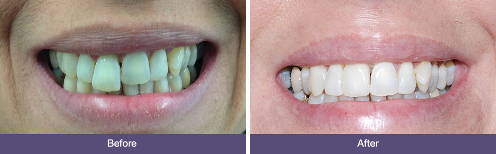 Before & After Dental Implants Reading