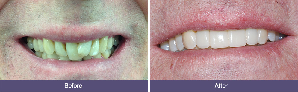 DH before and after dental implants