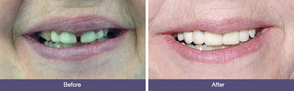 E Jeal before and after general dentistry