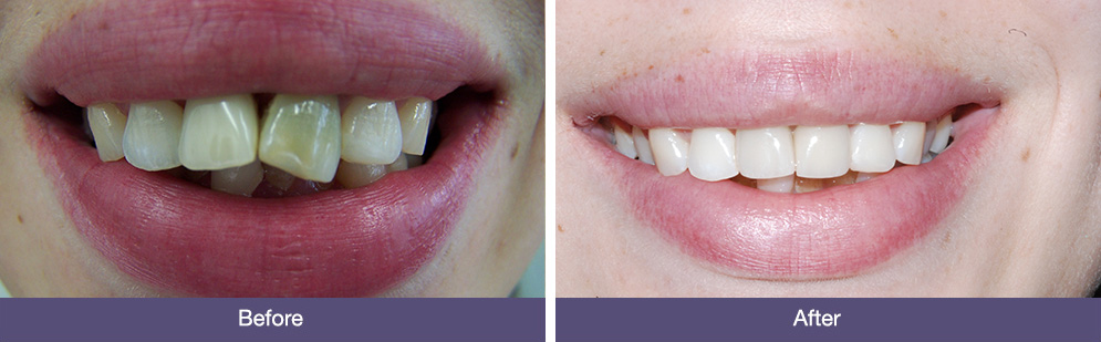 J Allan before and after dental implants
