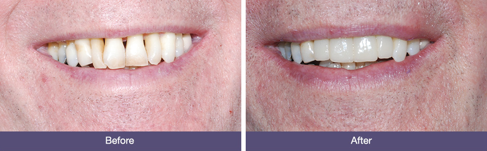 J Kewley before and after dental implants