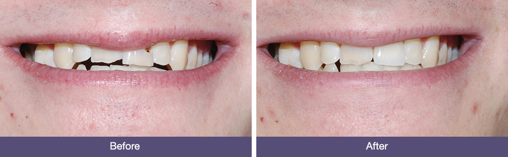 R Cooke before and after dental implants
