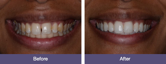 tooth whitening before and after results