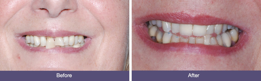 Before ad After DEntal Implants