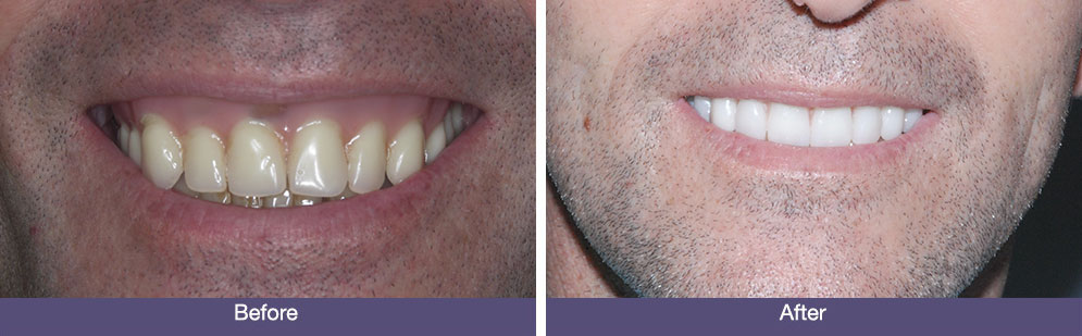 D Batchelor before and after dental implants