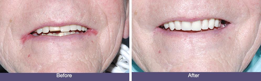 D Batchelor before and after dental implants