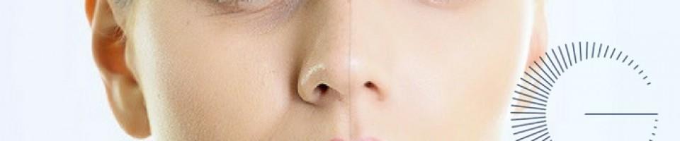 womens face half peeling off