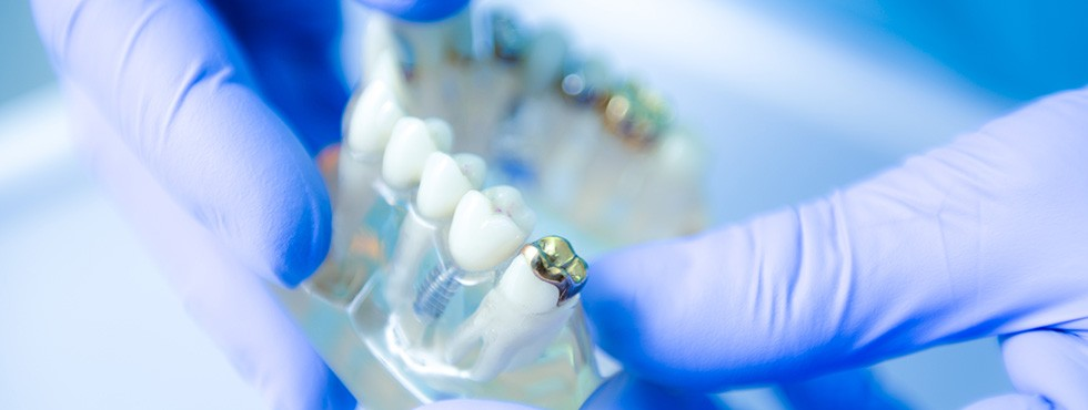 30 years of experience in placing Dental Implants